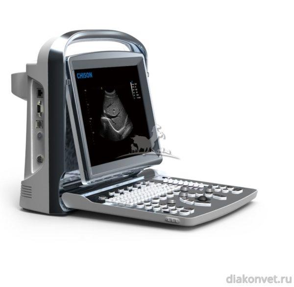 Черно-белый УЗИ-сканер CHISON ECO 1